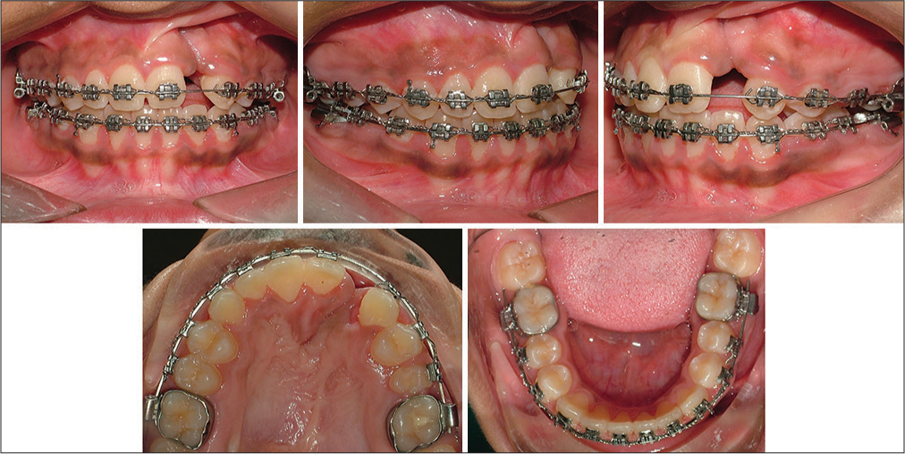 APOS Trends in Orthodontics - Two-phase orthodontic