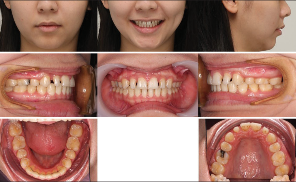 Interdisciplinary Management Of An Orthodontic Patient With