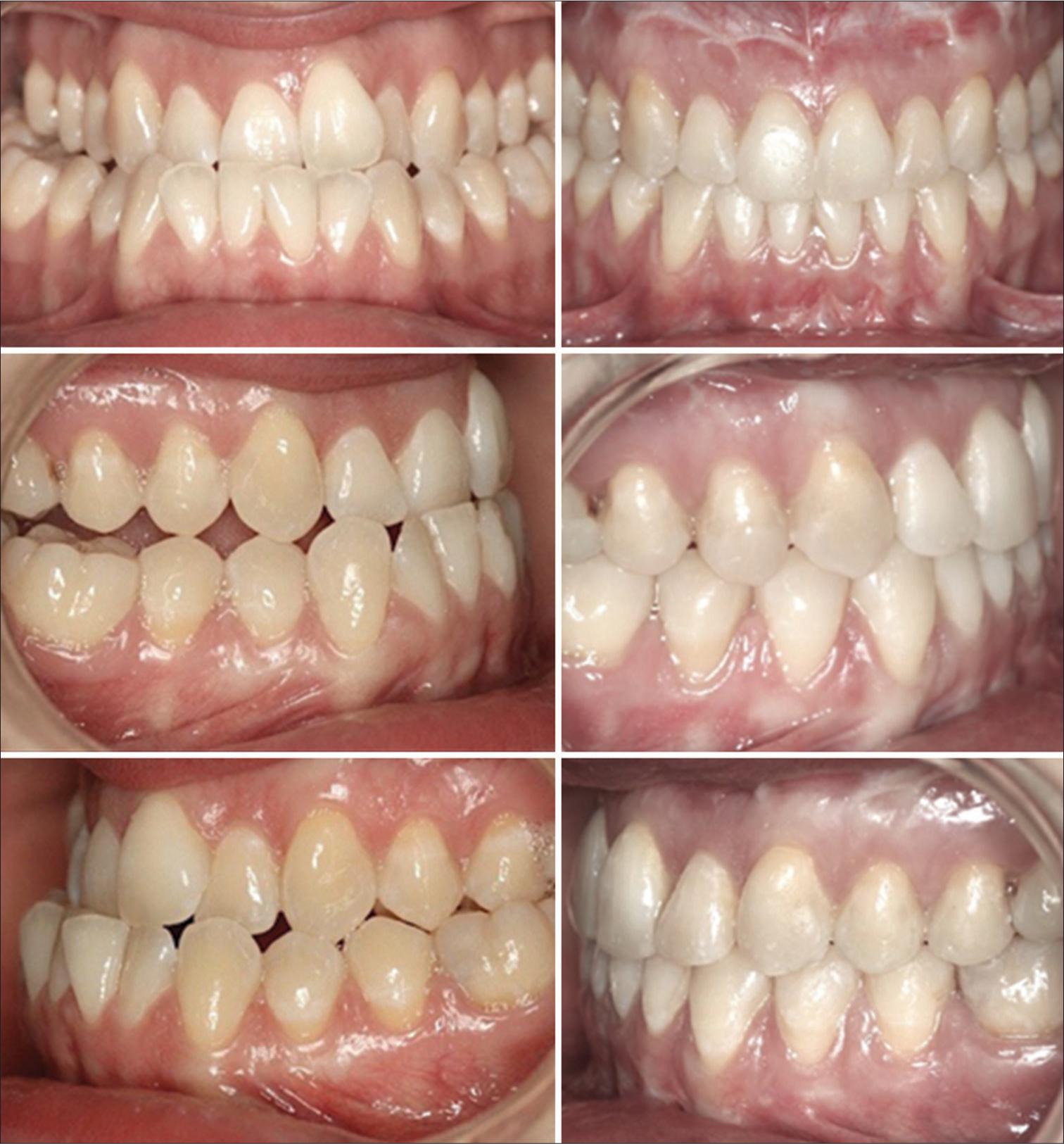 APOS Trends in Orthodontics - Skeletal Class III