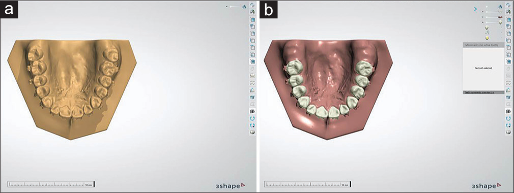 APOS Trends in Orthodontics - Controlled Molar Inclination